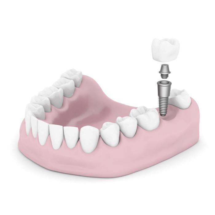 Dental Implant Diagram | Carlton OR