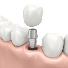 Dental Implant | Carlton OR Dentist