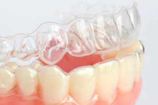 Invisalign | Carlton OR